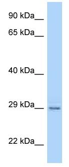 Western blot - Anti-PAQR4 antibody (ab125435)