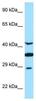 Western blot - Anti-Torsin A antibody (ab125437)