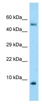 Western blot - Anti-S100A10 antibody (ab125438)