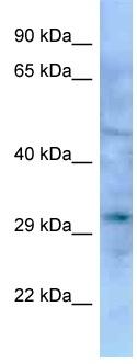 Western blot - Anti-Emx1 antibody (ab125443)