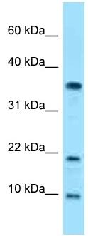 Western blot - Anti-SNRPE antibody (ab125445)