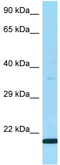 Western blot - Anti-LY6G5B antibody (ab125447)