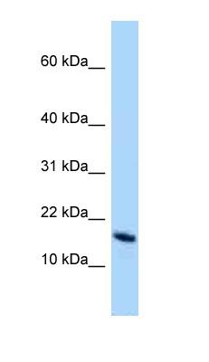 Western blot - Anti-OCIAD2 antibody (ab125449)