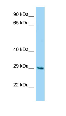 Western blot - Anti-FAM122B antibody (ab125451)