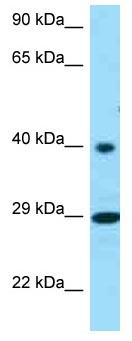 Western blot - Anti-RGR antibody (ab125460)