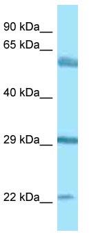 Western blot - Anti-BEGAIN antibody (ab125461)
