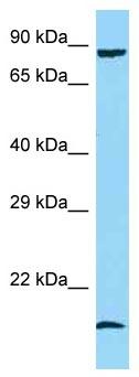 Western blot - Anti-GADD34 antibody (ab125464)