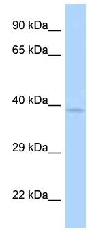 Western blot - Anti-ANKRD9 antibody (ab125469)