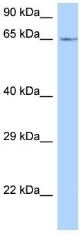 Western blot - Anti-LMOD1 antibody (ab125470)