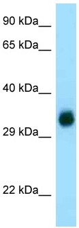 Western blot - Anti-Glutamyl hydrolase gamma antibody (ab125473)
