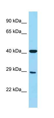 Western blot - Anti-CD16 antibody (ab125477)