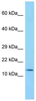 Western blot - Anti-BLOC1S2 antibody (ab125506)