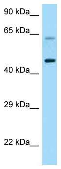 Western blot - Anti-CRF1 antibody (ab125509)