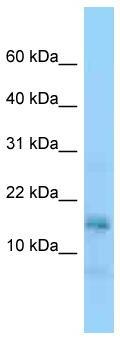 Western blot - Anti-NAP1L5 antibody (ab125510)