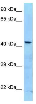 Western blot - Anti-ADAT3 antibody (ab125514)
