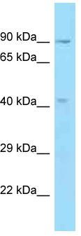 Western blot - Anti-OBFC1 antibody (ab125515)
