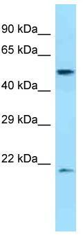 Western blot - Anti-DPEP2 antibody (ab125516)