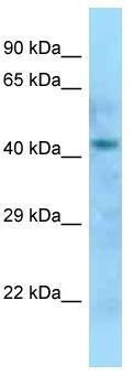 Western blot - Anti-DOM3Z  antibody (ab125518)