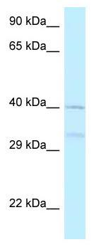 Western blot - Anti-AZI2 antibody (ab125523)