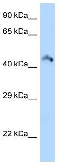 Western blot - Anti-RIMKB antibody (ab125524)