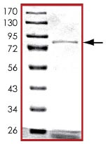 SDS-PAGE - XIAP protein (Tagged) (ab125537)