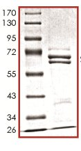 SDS-PAGE - SETMAR protein (Human) (ab125543)