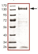 SDS-PAGE - TLK1 protein (Active) (ab125563)