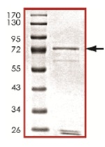 SDS-PAGE - LMTK3 protein (Tagged) (ab125573)