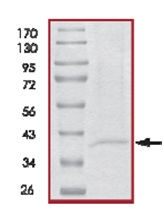 SDS-PAGE - ING1 protein (His tag) (ab125575)