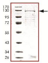 SDS-PAGE - PDE6C protein (Tagged) (ab125587)