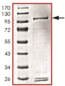 SDS-PAGE - PIK3C2G protein (Active) (ab125595)