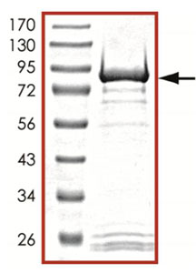 SDS-PAGE - GRK7 protein (Active) (ab125599)