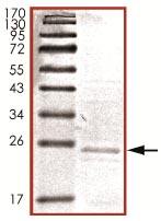 SDS-PAGE - TNNI1 protein (His tag) (ab125609)