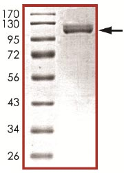 SDS-PAGE - MSK2 / RSK-B protein (Active) (ab125610)