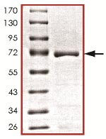 SDS-PAGE - AATK protein (Tagged) (ab125617)