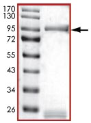 SDS-PAGE - GRK2 protein (Active) (ab125620)