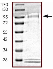 SDS-PAGE - ULK2 protein (Active) (ab125622)