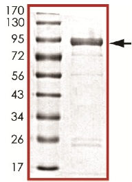 SDS-PAGE - Tau tubulin kinase 2 protein (ab125631)