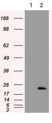 Western blot - Anti-Cardiac Troponin I antibody [4E5] (ab125699)