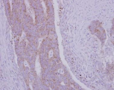Immunohistochemistry (Formalin/PFA-fixed paraffin-embedded sections) - Anti-RRM1 antibody (ab125713)