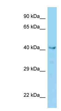 Western blot - Anti-VPS36 antibody (ab125715)