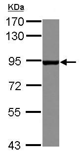 Western blot - Anti-ARHGEF7 antibody (ab125870)