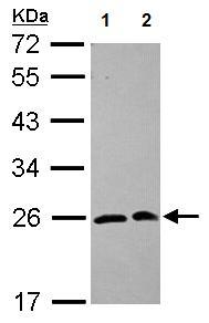 Western blot - Anti-SAR1 antibody (ab125871)