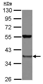 Western blot - Anti-PSMD8 antibody (ab125875)