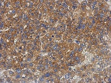 Immunohistochemistry (Formalin/PFA-fixed paraffin-embedded sections) - Anti-PNPLA4 antibody (ab125879)