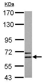 Western blot - Anti-CPNE6 antibody (ab125883)