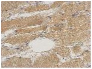Immunohistochemistry (Formalin/PFA-fixed paraffin-embedded sections) - Anti-Septin 2 antibody (ab125915)