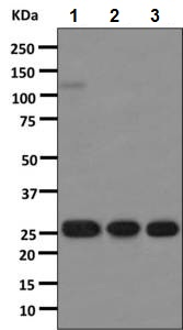 Western blot - Rabbit monoclonal H19-5 Anti-Human kappa light chain (ab125919)
