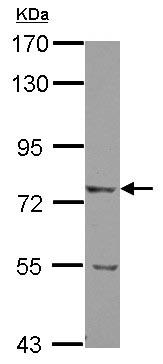Western blot - Anti-LRRN5 antibody (ab125921)