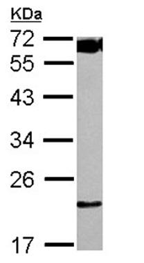 Western blot - Anti-TMA16 antibody (ab126042)